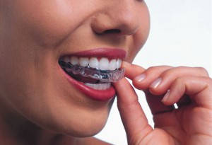 Invisalign Myths Merrimack NH