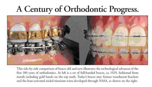 orthodontics history merrimcak nh
