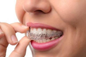 Invisalign for the Holidays Merrimack NH