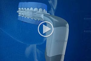 Acceledent Elliott Orthodontics Merrimack New Boston NH