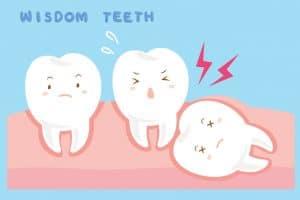 Wisdom teeth Merrimcak NH