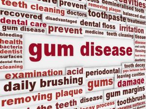 Gum Disease Merrimack NH